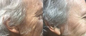 before and after hair loss treatment photo